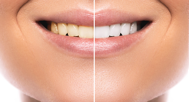 Side by side comparison of teeth before and after teeth whitening by Dr. James A. Vette, DDS in Germantown, MD